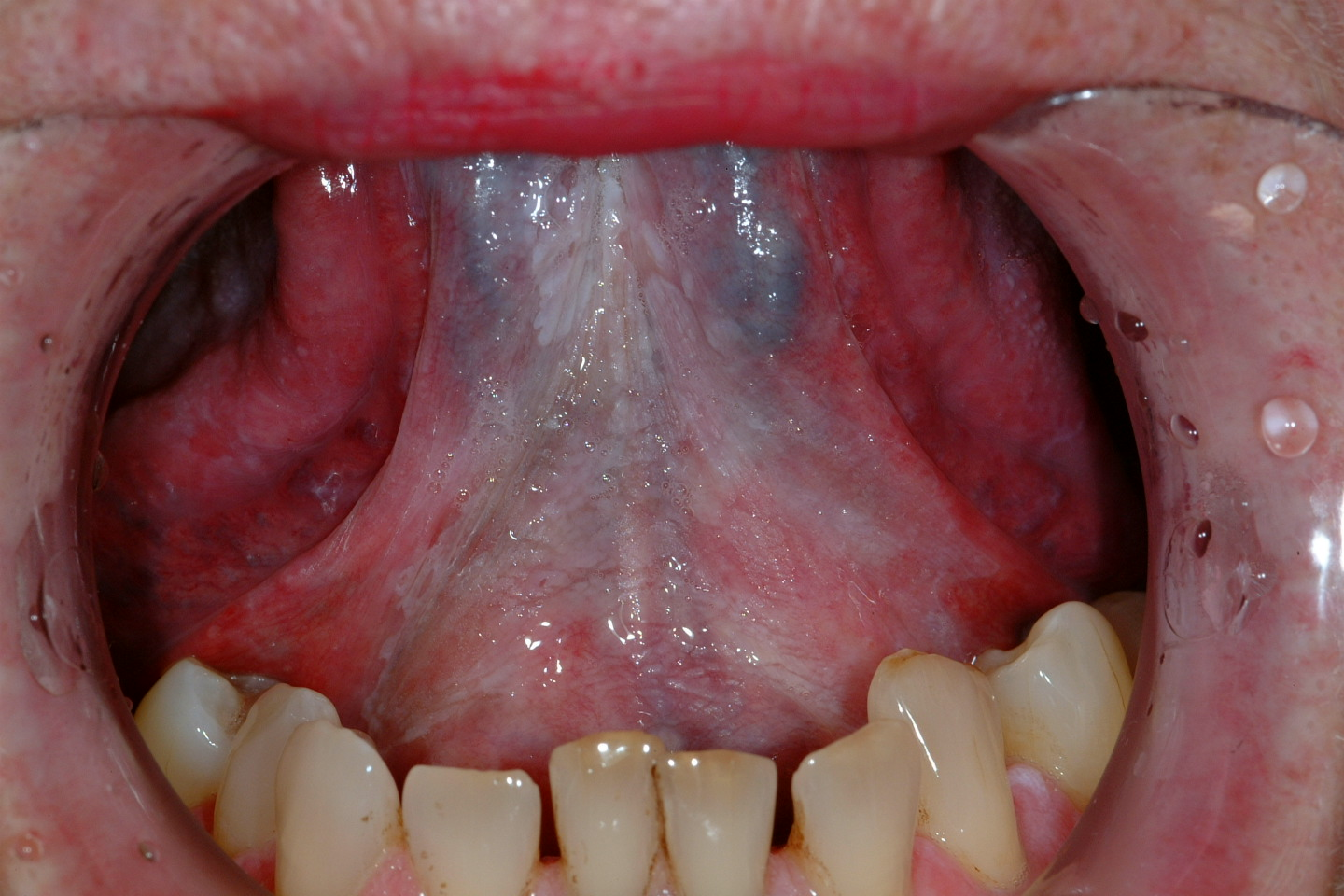 oral cancer and hpv speech outline Risk factors for oral hpv write an abstract for each article an abstract, is a shortening, in your own words, of the text of a written work the.