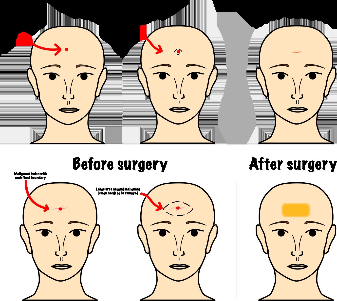 Facial Skin Cancer